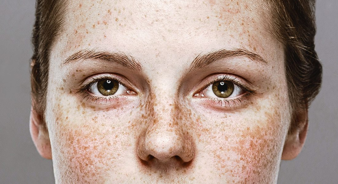 Close up of a woman's eyes with a lot of freckles