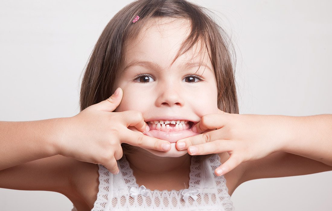 child grinning with a missing tooth